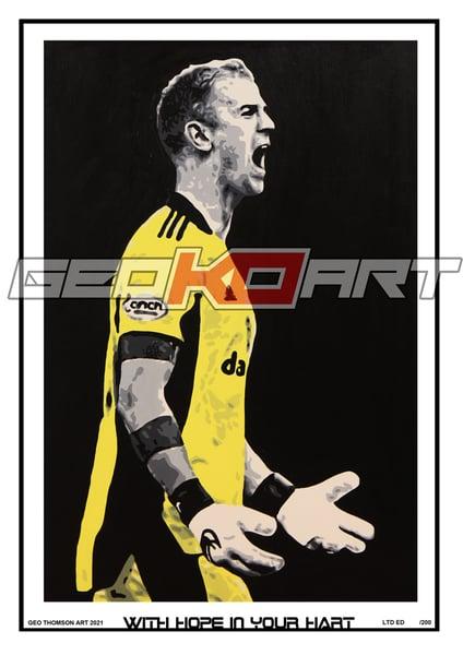 Image of JOE HART CELTIC FC
