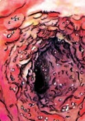 Image of Preying Mantiss