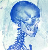 "Image of ""Studies of a Skull""-right 60 degree View, LIMITED EDITION Screen Print Anatomical Lowbrow Art, C.T"