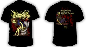 Image of INOPEXIA Myocardical Biopsy Had a Lethal Outcome T-shirt White/Black